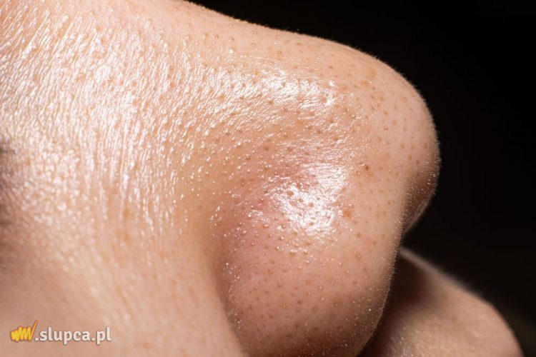 Close-up face women show the small pimple blackheads on skin of nose.